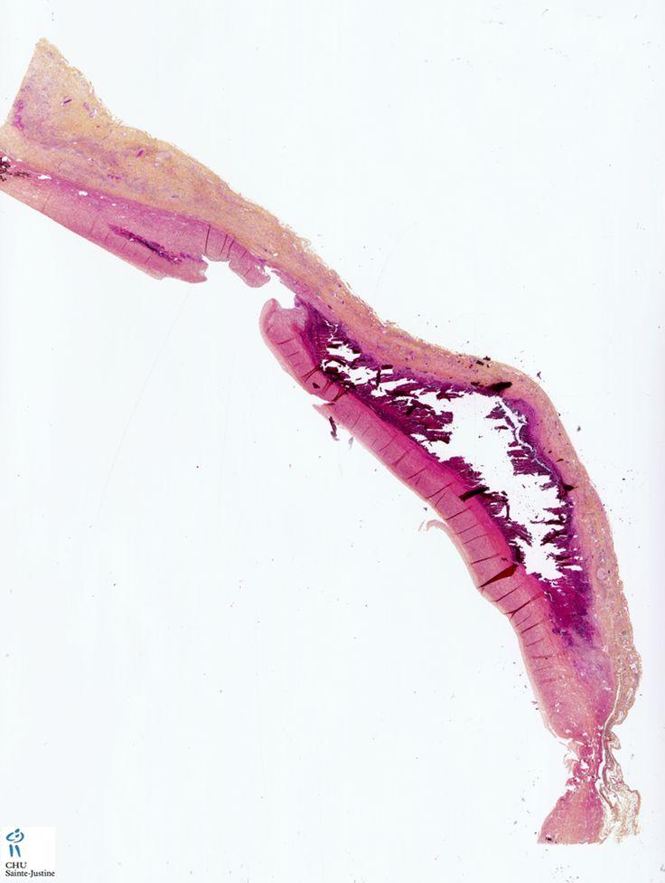 aortic dissection - Humpath.com - Human pathology