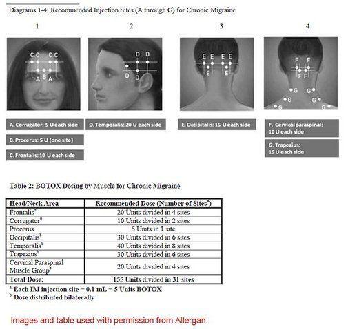 How many Botox injections for chronic migraine? - Migraine