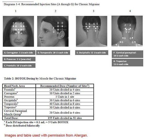How many Botox injections for chronic migraine? - Migraine