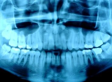 X-rays aren't a typical procedure in regular dental check-ups; however, under certain Dentist Hillsdale NJcircumstances, it may be necessary to receive frequent X-rays to keep track of one's dental condition.  #Artofmoderndentistry