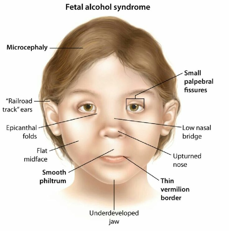 Fetal alcohol syndrome .... Note ....1) NTD occur but no ...
