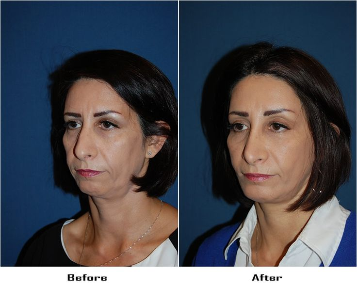 Procedures Performed:      Rhinoplasty     Deep Plane Minituck     Endoscopic Brow Lift: 3/4 Brow Lift     Eyelid: Lower Lid Blepharoplasty with SOOF     Facial Implants:  Chin Implant     CO2 Laser Resurfacing: Eyes and Mouth     Dr. Freeman's Makeovers