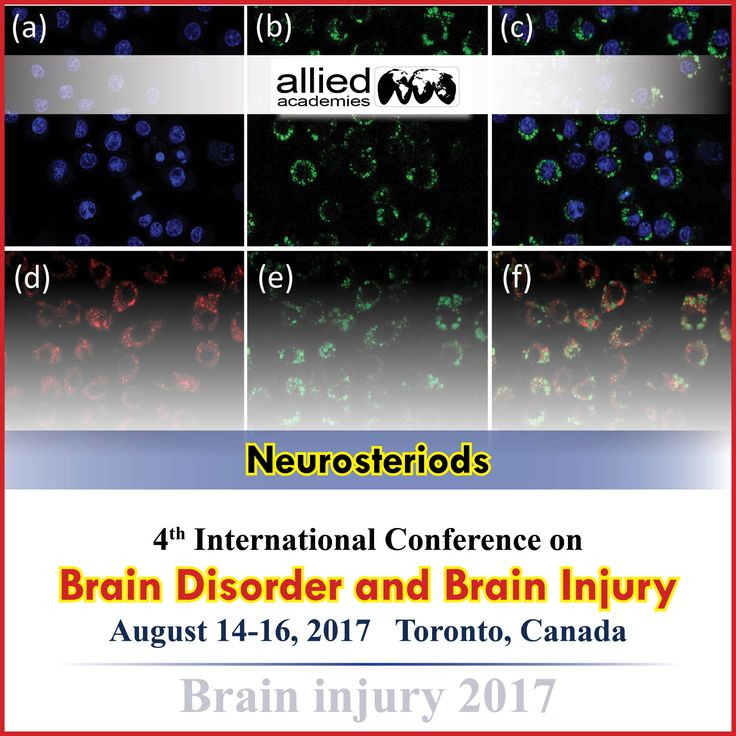 Neurosteroids and TBI #Neurosteroids are the endogenous molecules that are enriched in the brain and also produced in the adrenals, gonads, and other peripheral tissues. Many neurosteroids demonstrate pleiotropic actions that are potentially relevant to traumatic brain injury (TBI) and its therapeutics. This is the preclinical data supporting a role for neurosteroids in TBI.