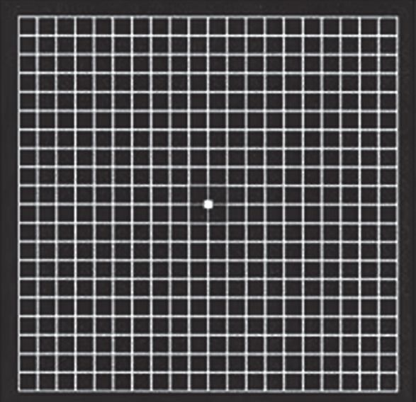 Figure 2 Chart No 1 The Conventional Amsler Grid 4 Met