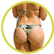 Fat Transfer to Buttocks | My Shape Lipo