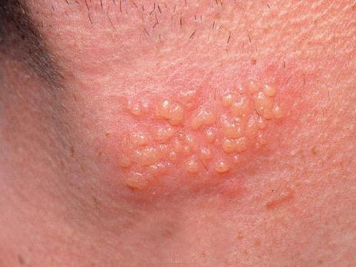 stop herpes outbreak