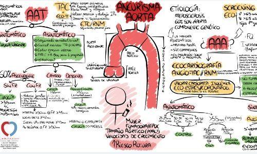 Patología Aórtica Aguda. Descubro un aneurisma... y qué hago con él