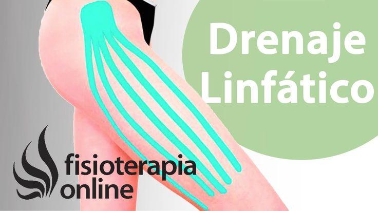 Kinesiotape como ayuda en drenaje linfático y eliminación de edemas.
