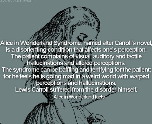 Alice in Wonderland Syndrome, AIWS, also known as Todd's Syndrome or lilliputian hallucinations