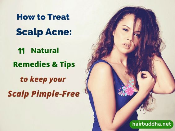 How to Treat Scalp Acne (2)