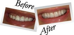 In our center You will see your teeth different automatically before and after #dental #Bonding.