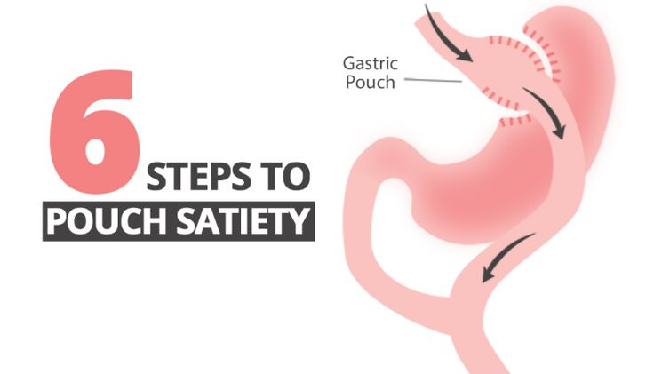 70 best obesity weight loss surgery in the news images on 6 steps to keep pouch satiety after bariatric surgery fandeluxe Gallery