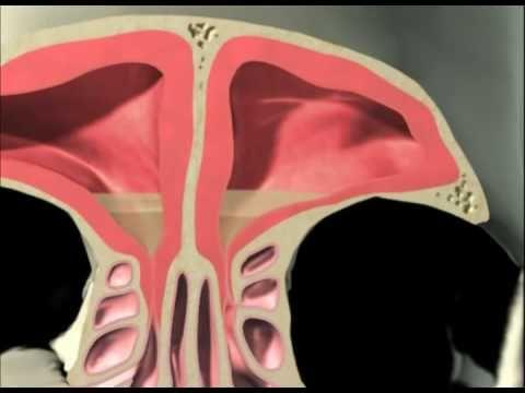 Dr.Murat Enöz - ENT Doctor Istanbul - Rhinoplasty in Istanbul : Akut Sinüzit Nedir, Nasıl Tedavi Edilir?