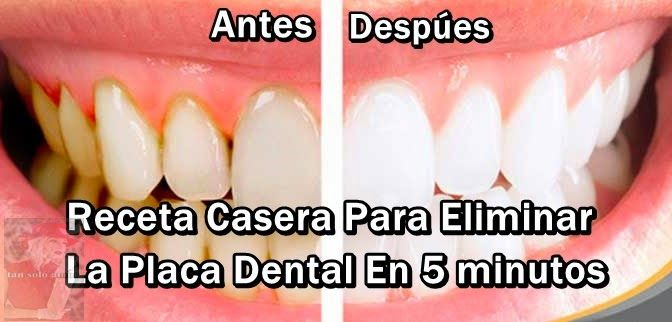 Como eliminar la placa dental en 5 minutos, sin ir al dentista!!!