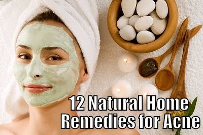 12 Best Home Remedies for Acne You Will Read This Year  |   AcneHealingTips.com