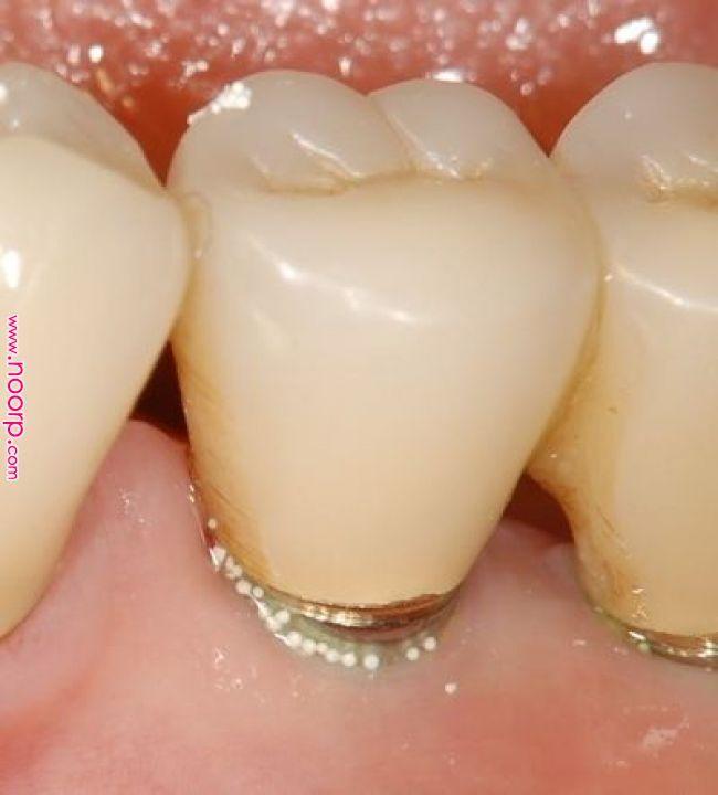 誰もが知っている歯磨き粉が歯茎をボロボロにする メーカーが隠す歯磨き粉の悪夢 腫れに歯科医師が気づかず ツブツブ入りの歯磨き粉をそのまま使用していた場合は炎症は進み 歯肉がどんどん腫れ 歯がグラグラになる可能性も ナチュナルクリニックo Health