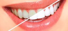 13 Simple Ways To Get White Teeth Overnight