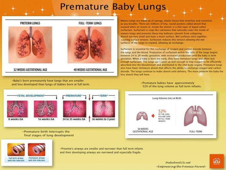 a premature baby babies lung development and infection medical poster photo