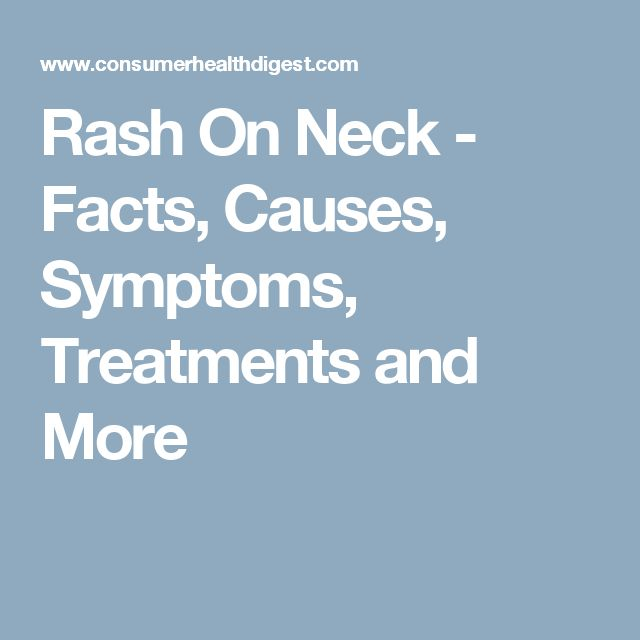 Rash On Neck - Facts, Causes, Symptoms, Treatments and More