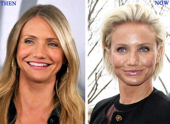 Cameron Diaz Plastic Surgery Photo Before and After