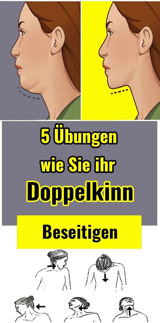 5 exercises to clear your double chin