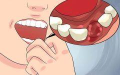 Os 10 Sinais de Infecção Dentária e Como Tratar em Casa
