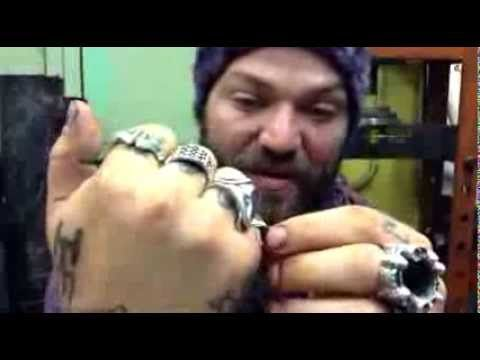 Jackass Bam Margera - smashed rings removal