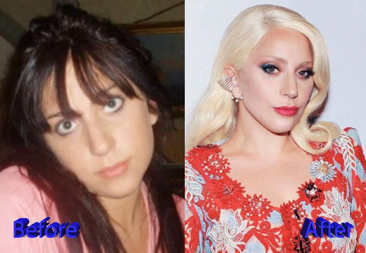 Lady Gaga Before and After Plastic Surgery2