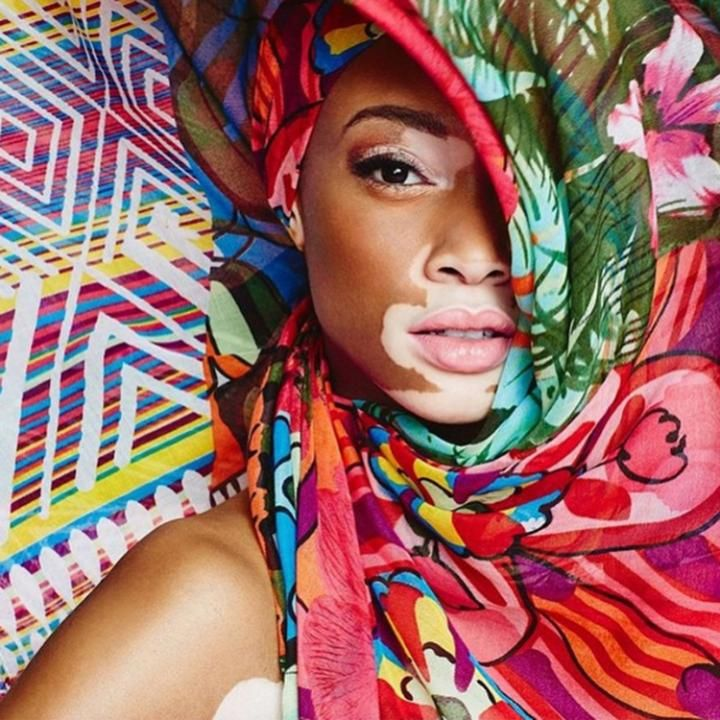 Winnie Harlow-changing the face of fashion