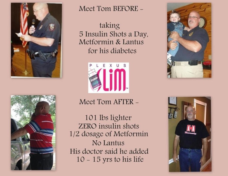 23 Best Before Amp After Plexus Images On Pinterest Plexus