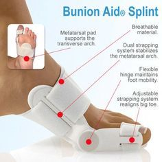 Bunion Treatment Splint #Bunion - #Bunion, #BunionCorrector, #Bunionpain, #Bunionrelief, #Bunionremoval, #Bunions, #Bunionsurgery, #Buniontreatment, #Footbunion - http://app.cerkos.com/pin/bunion-treatment-splint-bunion-7/