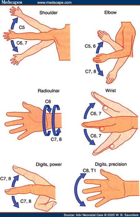 20 best Upper Limb HAP images on Pinterest | Hand therapy, Anatomy ...