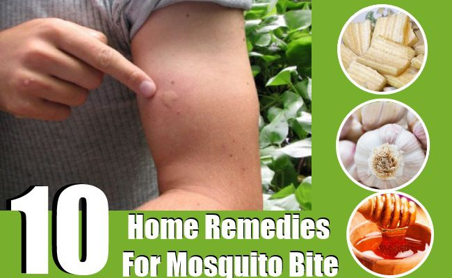 Home Remedies For Mosquito Bite