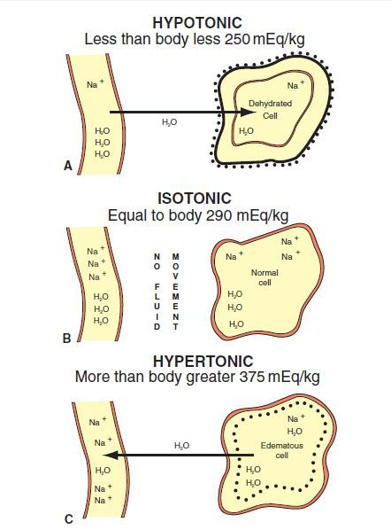 Effects of fluid shifts in isotonic, hypotonic and hypertonic states.