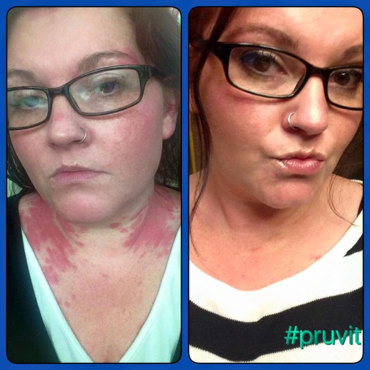 dramatic improvement in psoriasis and other ailments from Keto OS.  Order yours at CleanEnergy@pruvitnow.com