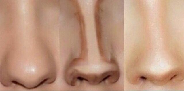 Nose Contouring                                                                                                                                                                                 More