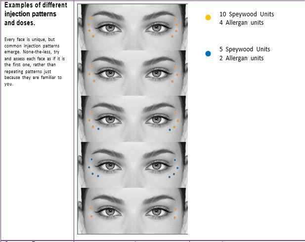 Crow's feet Botox injection pattern | botox in 2019 | Botox