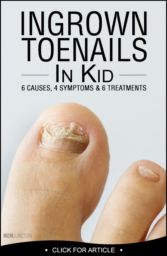 What ingrown toenail treatments have proven to be most effective?