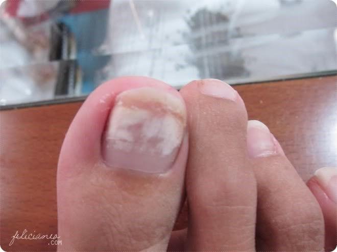 Toe Nail Fungus Code