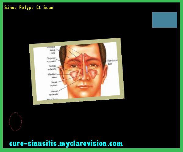 Sinus Polyps Ct Scan 135851 - Cure Sinusitis