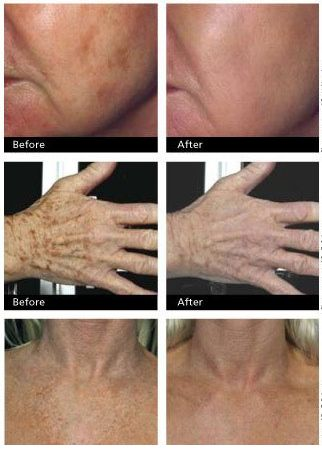Once you age, your skin is the first thing that is seen as affected, sun,…