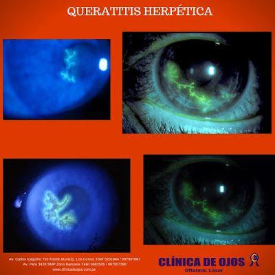 Clínica de Ojos Oftalmic Láser: QUERATITIS HERPÉTICA