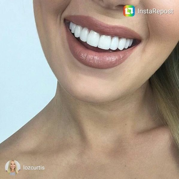 Close up of Porcelain Veneers hand crafted and designed by Dr Angelo Lazaris for Lauren Curtis