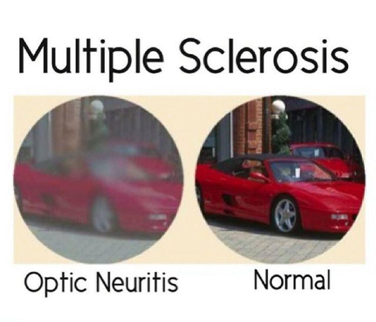 Multiple Sclerosis Awareness #msawareness #curems Optic Neuritis #mseducation…
