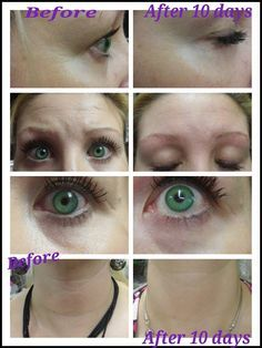 younique uplift eye serum
