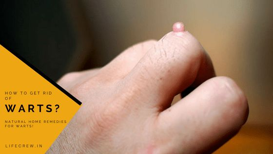 How to Get Rid of Warts, Natural Home Remedies for Treating Warts, How to Treat Warts