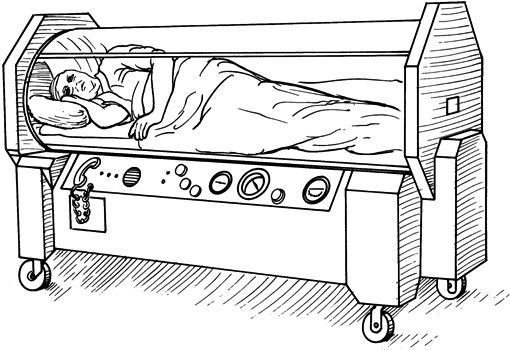 monoplace hyperbaric chamber illustration
