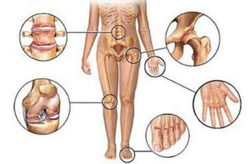 Diz ekleminde aşınma ve yırtılma sonucu iltihap veya el ve ayak parmaklarında eklem ağrısı sık görülür ve genelde ilaçla geçmelerini bekleriz.