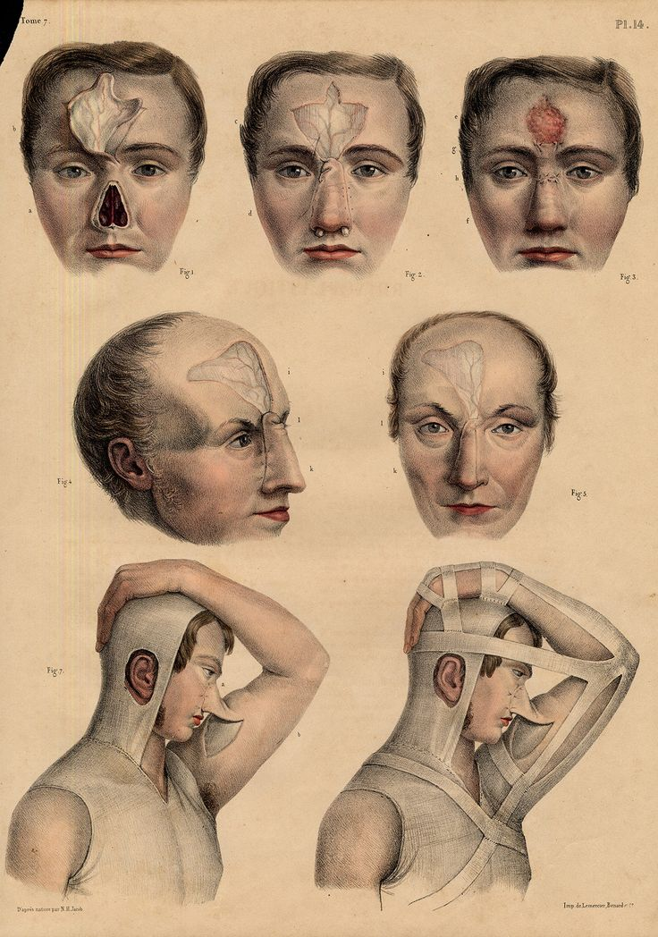 the history of plastic surgery Plastic surgery at first thought might seem like an easy, quick way to  have a  history of cancer, have had previous surgeries, or are a little.