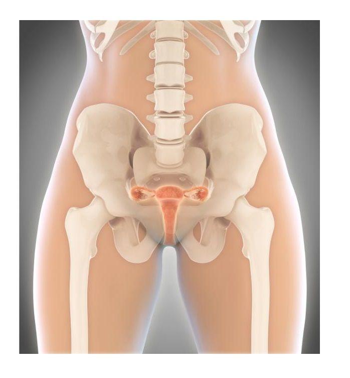 La displasia cervical es cuando aparecen celulas de forma anormal en la parte alta del cuello uterino. Esto es considerado como un sintoma precanceroso.